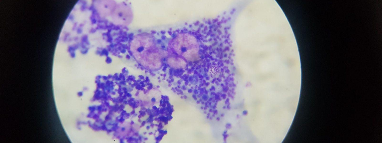 macrophages-infectes