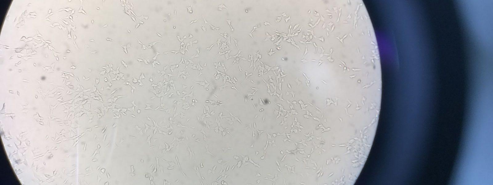 Neuroblastomes